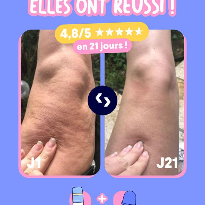Ventouse Anti-Cellulite 21 jours